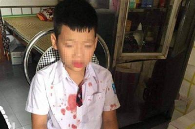 Cháu bé bị đánh chảy máu mũi.