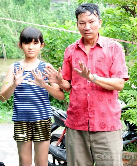 Ông Trần Thanh Tòng và con gái có bàn tay, chân thừa ngón.
