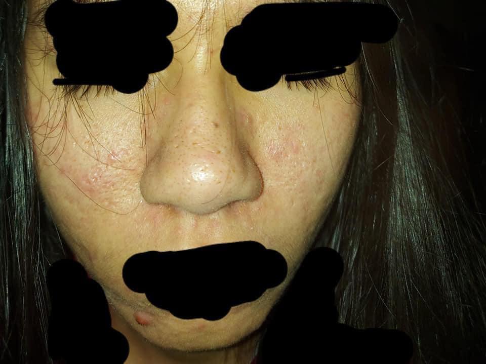 Hình ảnh cô gái dùng để xin tư vấn da