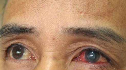 Mảnh vữa văng vào mắt, người đàn ông suýt mù mắt do nhiễm khuẩn mủ trực xanh