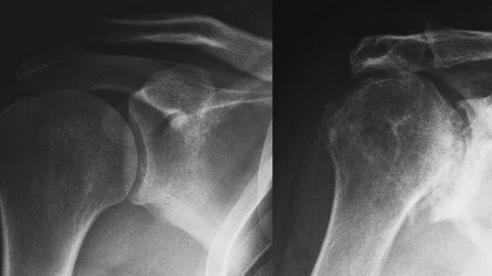 Chấn thương khớp vai thường 'ẩn mình' dưới những triệu chứng đau nhức thông thường