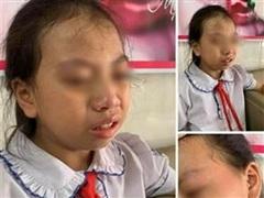 Hà Giang: Tạm đình chỉ cô giáo tát học sinh lớp 4 ngay trong lớp học