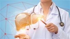 Ai cần tầm soát sớm ung thư gan?