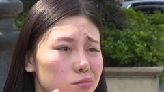 Rót tiền tới viện thẩm mỹ làm đẹp, người phụ nữ nhận lại gương mặt méo
