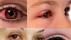 'Chìa khóa' chữa trị dị ứng mắt