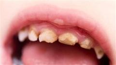Vì sao răng sữa bị sâu?
