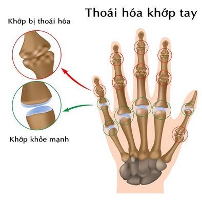 Đề phòng viêm thoái hoá khớp ngón tay