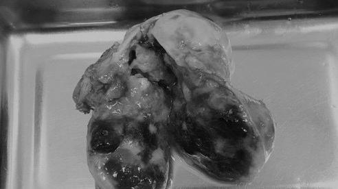 Người phụ nữ có 'khối đá' di động trong tim