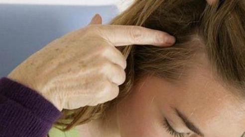 Cách ngăn ngừa mụn mọc trên da đầu
