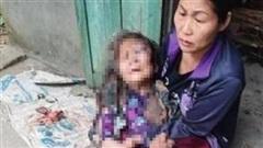 Hành vi tàn ác của thanh niên với cụ bà 90 tuổi