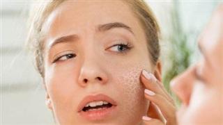 5 nguyên liệu dễ kiếm giúp bạn ''tạm biệt'' làn da khô nẻ trong mùa đông