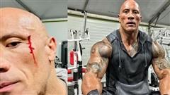 The Rock bị thương vì tập thể hình với xích nặng 23kg