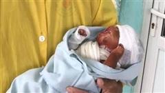 Thêm một trẻ sơ sinh mắc bệnh da vảy cá, căn bệnh nguy hiểm như thế nào?
