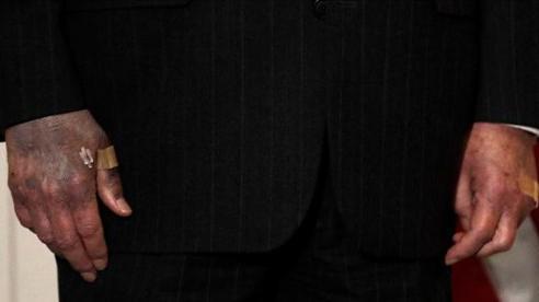 Lãnh đạo Thượng viện Mỹ gây lo lắng bởi bàn tay chuyển màu khác thường