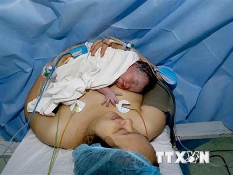Long An: Cứu sống một bé gái sinh non chỉ nặng 700 gram