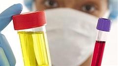 Tiểu máu, dấu hiệu của một số bệnh lý nguy hiểm