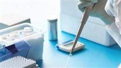 Bộ Y tế thông báo mức giá dịch vụ xét nghiệm COVID-19