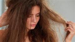 Lý do khiến tóc khô xơ, gãy rụng