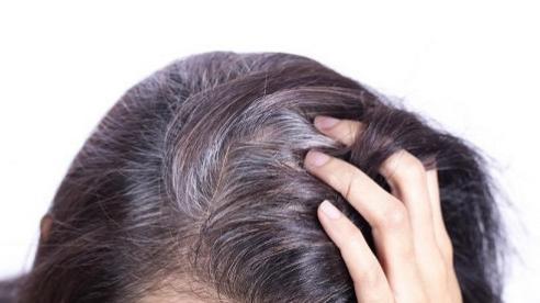 Bạn đã biết lý do khiến tóc bạc sớm dù còn trẻ tuổi?