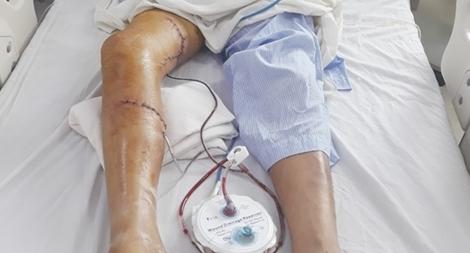 Hỗ trợ khẩn cấp cứu bàn chân bị tai nạn máy cưa