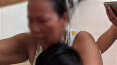 Bé gái 3 tuổi nghi bị mẹ đánh chấn thương sọ não tiên lượng rất xấu
