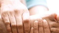 Suy giãn tĩnh mạch chi dưới - nhiều biến chứng khó chữa