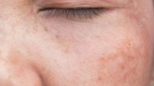 Bạn đã biết cách kiểm soát việc tăng sắc tố da?