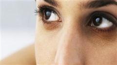 2 công thức xóa sạch vết quầng thâm mắt