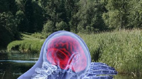 Amip ăn não gây chết người lan rộng ở Mỹ qua hệ thống nước ngọt