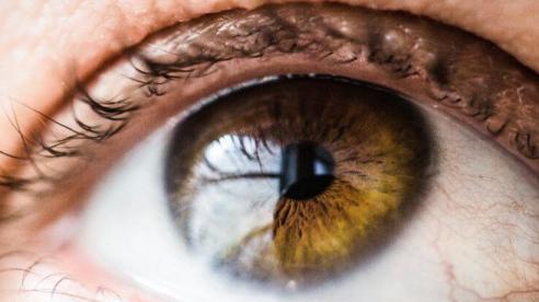 Dấu hiệu bất thường ở mắt tiết lộ về sức khỏe của bạn