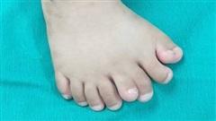 Kỳ lạ một bé trai có tới 9 ngón chân
