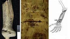 Chuyện lạ: Tập tục róc thịt người chết trên đảo Scotland cổ đại