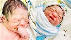 Sự thật về em bé chào đời cầm vòng tránh thai trong tay