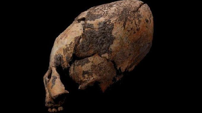Chuyện lạ: Người Trung Quốc cổ kéo dài hộp sọ để thể hiện quyền lực?