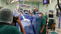 ĐỪNG LỠ ngày 15/7: KỲ TÍCH - Gần 100 y bác sĩ tách rời thành công 2 bé gái song sinh dính liền hiếm gặp; Cá voi khổng lồ xuất hiện ở Cù Lao Chàm