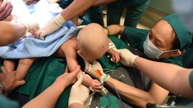Gần 100 y bác sĩ bắt đầu ca đại phẫu tách rời cặp song sinh phức tạp nhất Việt Nam