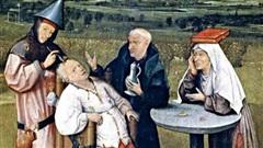 Kỳ lạ: Bác sĩ khoan lỗ trên đầu người để giải phóng các linh hồn ma quỷ