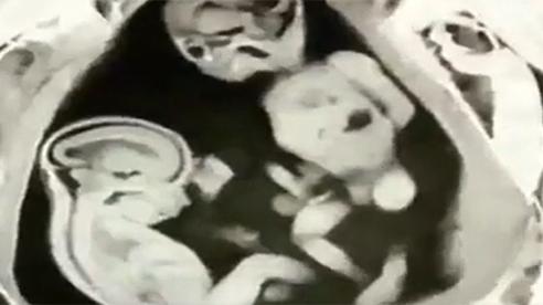 Video cặp sinh đôi đá nhau trong bụng mẹ