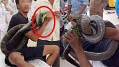 Lý do người đàn ông xách theo hổ mang chúa dài 3m vào bệnh viện sau khi bị cắn