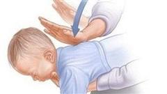 Lại một trẻ tử vong vì hóc thạch: Cơ hội duy nhất chỉ 4-5 phút, bố mẹ cần làm gì cứu con?