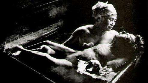 Những đại án nhiễm độc thủy ngân kinh hoàng trong lịch sử nhân loại