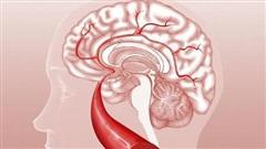 Nếu thấy cơ thể có tín hiệu '1 bộ phận bị cứng và 1 số vùng mềm đi' thì hãy cảnh giác nguy cơ bị xuất huyết não