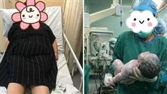 Sản phụ lên bàn đẻ nặng 159kg: Cả ê kíp mổ phải vật lộn đến toát mồ hôi, em bé sinh ra khiến gia đình hốt hoảng
