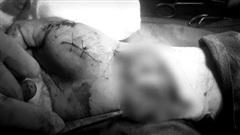 Cứu người đàn ông bị tai nạn kinh hoàng mảnh kính vỡ cứa vào tay đứt động mạch, máu chảy như vòi rồng