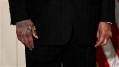 Lãnh đạo Thượng viện Mỹ lên tiếng về tình hình sức khỏe, từ chối nhắc tới 'bàn tay thâm tím'