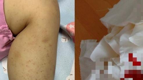 Bé gái 8 tuổi chảy máu mũi, xuất hiện ban đỏ và vết bầm tím, bác sĩ cảnh báo trường hợp nghiêm trọng có thể tử vong