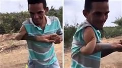 CÁI GÌ THẾ NÀY: Người đàn ông vặn cánh tay như xoắn dây thừng?