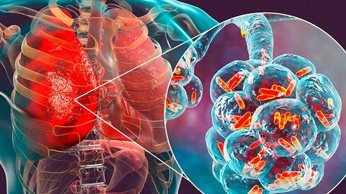 9 nhóm người có nguy cơ bị ung thư cao nhất: Hãy sớm biết để phòng tránh cẩn thận