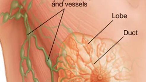 Dấu hiệu nhận biết và điều trị ung thư vú
