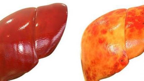 Gan nhiễm mỡ không chỉ do ăn nhiều chất béo: Đây là 4 'kẻ thù giấu mặt' cần cảnh giác
